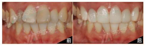 上牙6颗形态难看全瓷修复一例