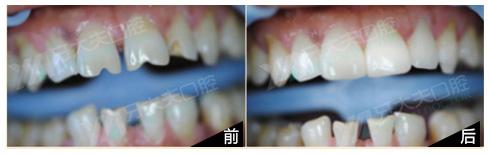 瓜子牙瓷贴面修复