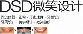 DSD微笑设计