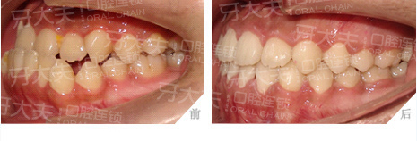 单科下侧切牙间距特别小的种植修复一例
