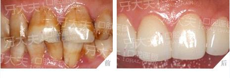 色素牙3D瓷贴面修复