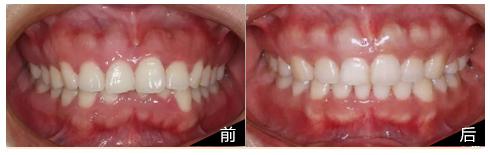 牙套日记:深覆合少女的牙套历程