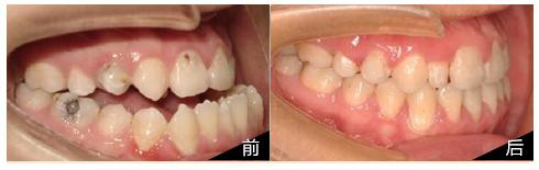 湖南地包天牙齿矫正最佳时期是何时