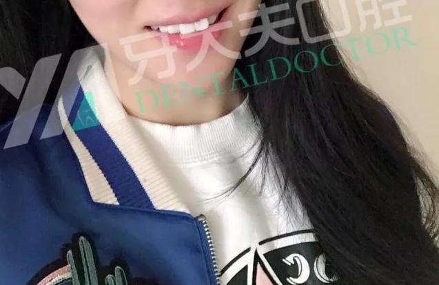 牙大夫520特辑|孕妈妈的牙套之旅